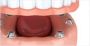 dentalimplants13