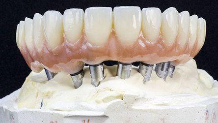 dentalimplants14